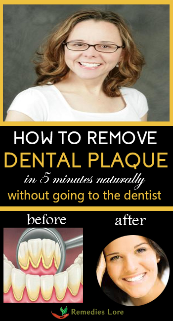 how to get rid of plaque on teeth home remedies