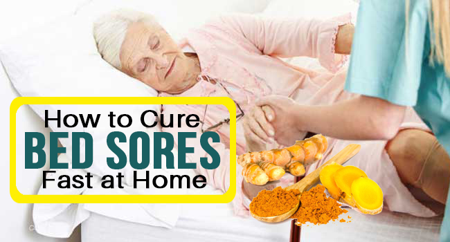 How To Cure Bed Sores Fast At Home Remedies Lore