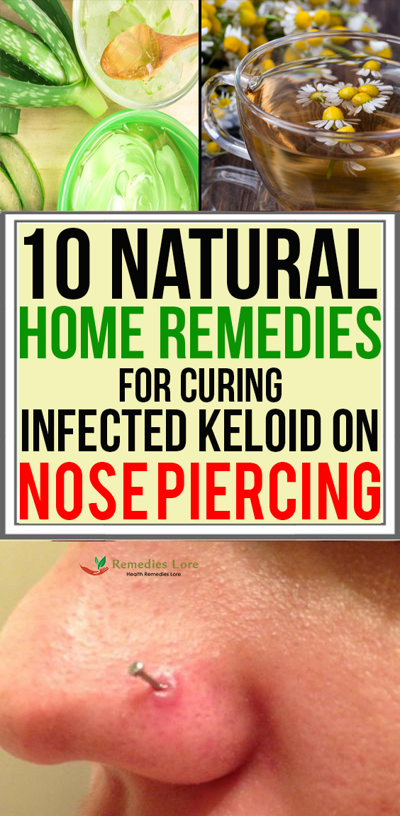 10 Natural Home Remedies for Curing Infected Keloid on Nose Piercing