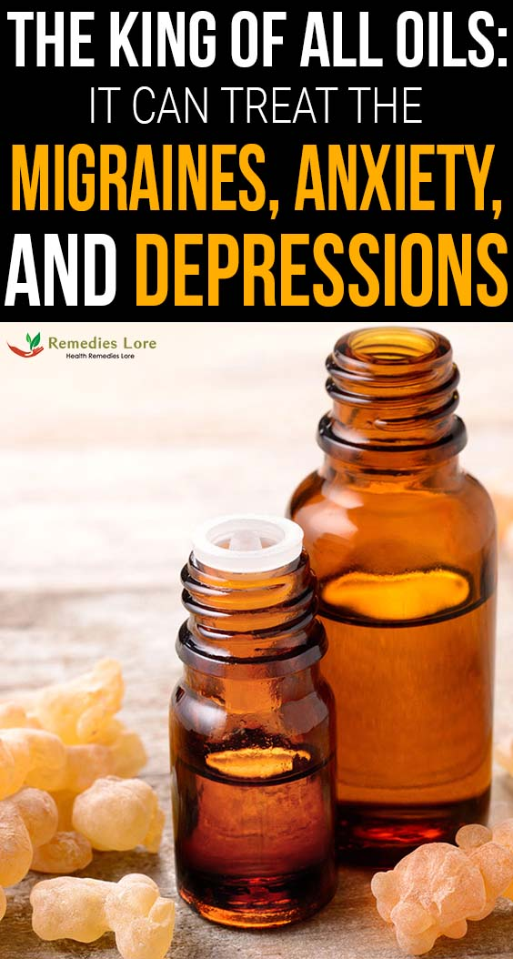 The king of all oils- it can treat the migraines, anxiety, and depressions