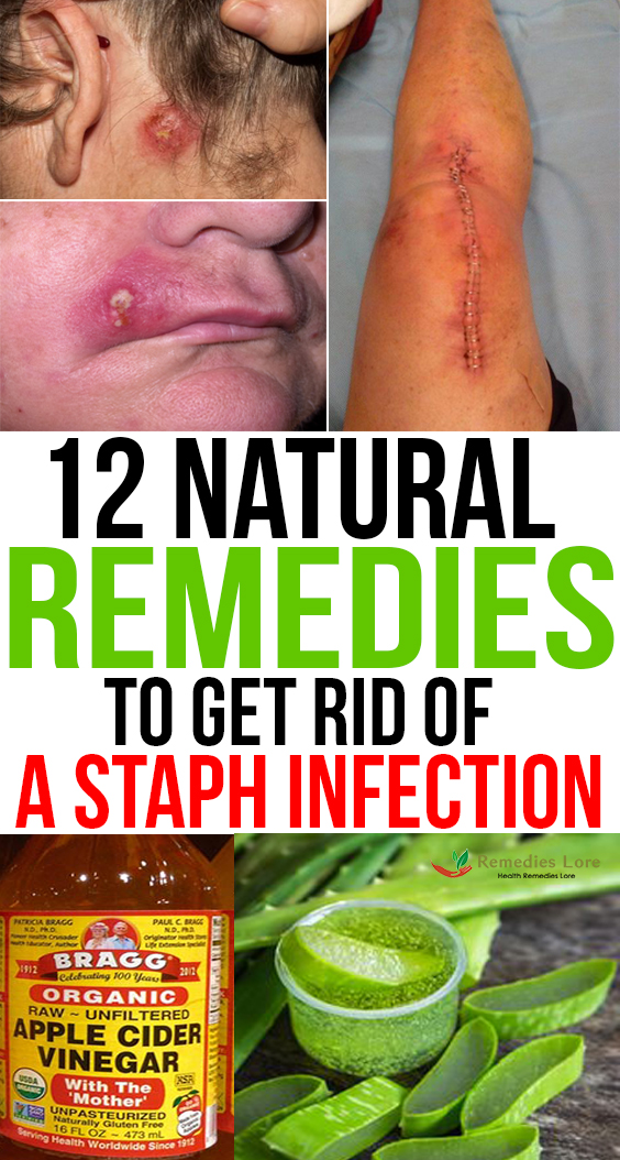 12 Natural Remedies to Get Rid of a Staph Infection